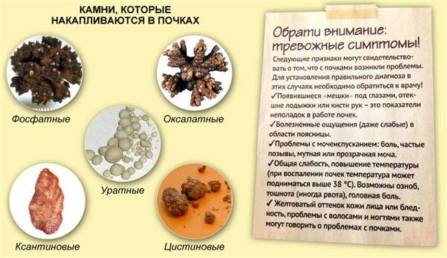 Что такое камни в почках?